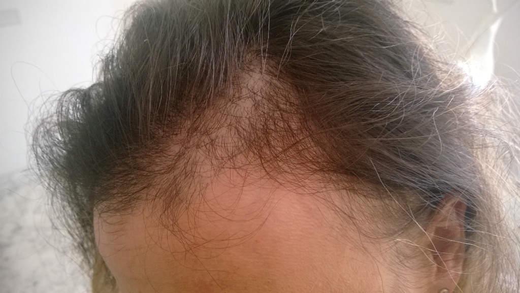 Perdita di capelli abbondante di una malattia