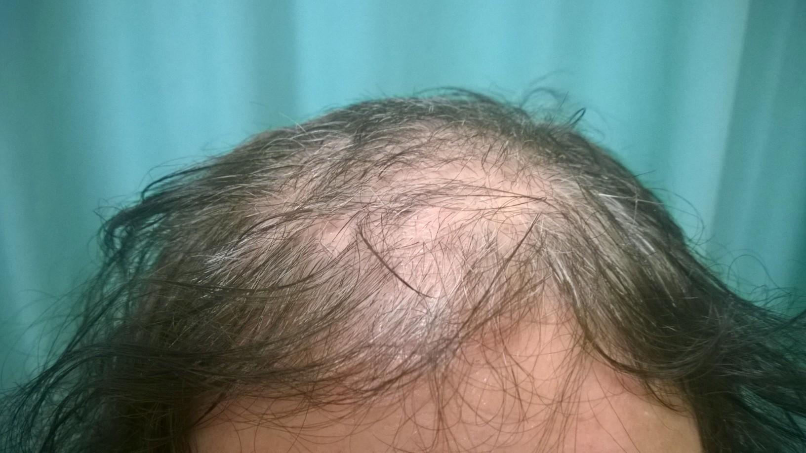 Spinga il buon shampoo contro una perdita di capelli