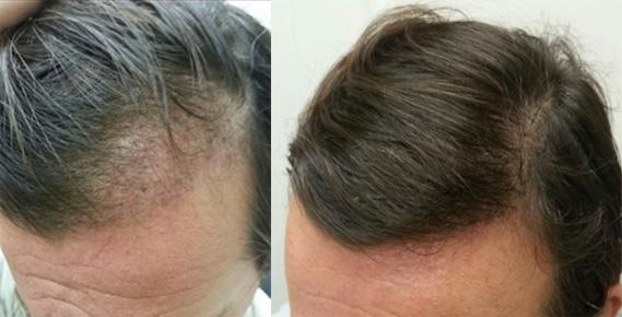 Maschere per capelli con risultati di senape
