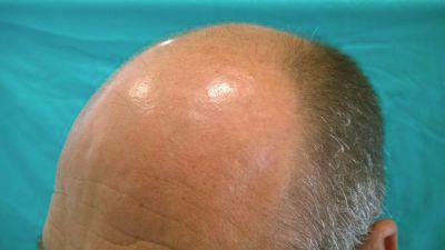 alopecia02-w1024