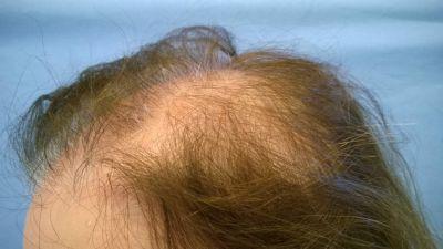 alopecia08-w1024