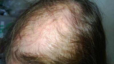 c_grado_alopecia3